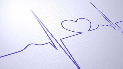 Heart monitor drawn on graph paper to symbolize how HSA administrators can be aids in your financial resources